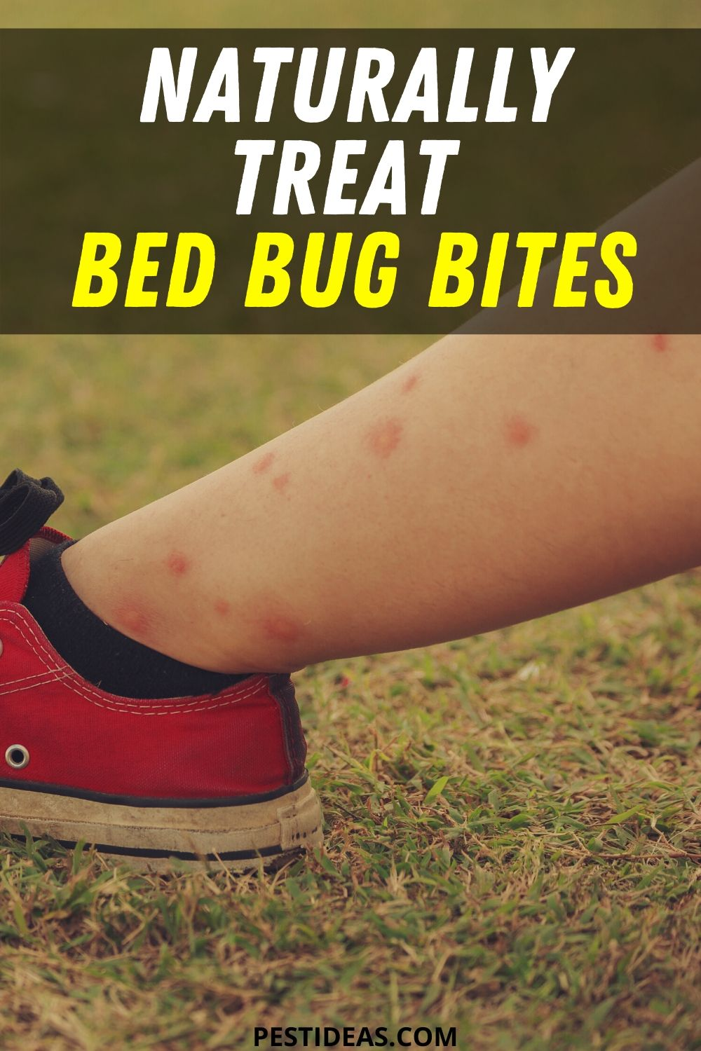 Naturally Treat Bed Bug Bites