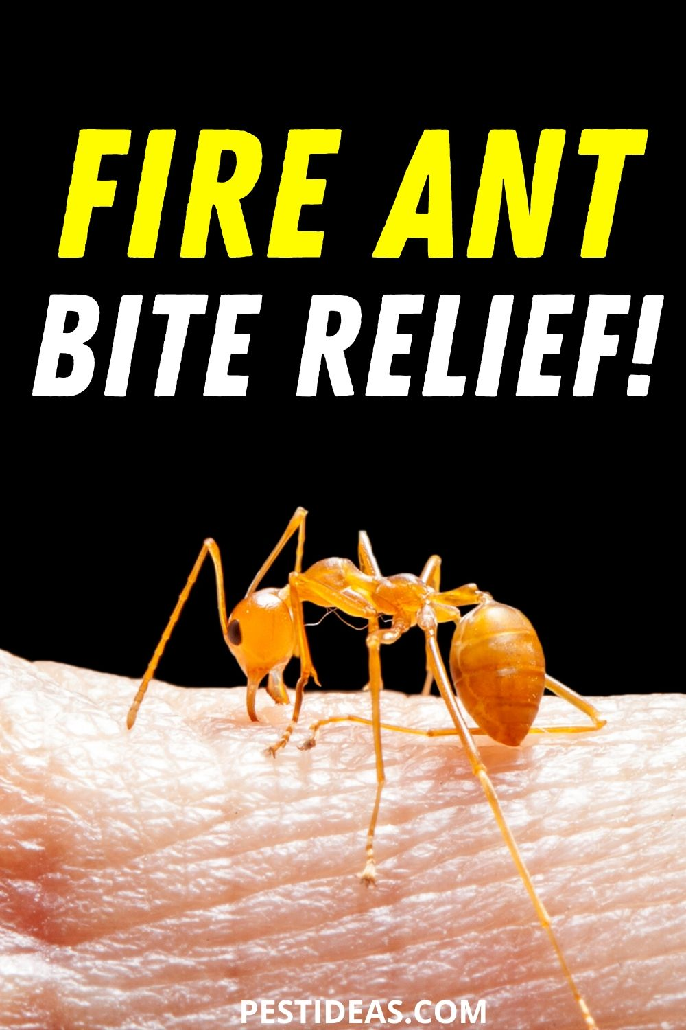 Fire Ant Bite Relief