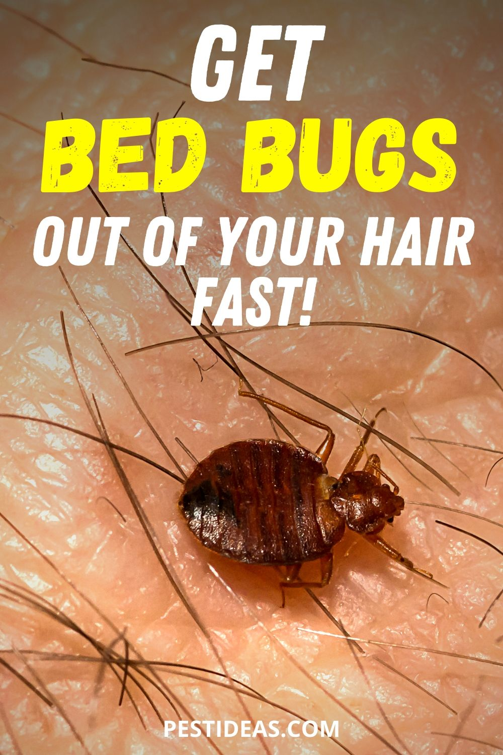 Get bed bugs out of your hair
